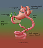 Roux-en-Y Gastric Bypass Surgery, Illustration
