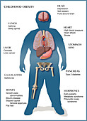 Health Effects of Childhood Obesity, Illustration