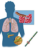 Cystic Fibrosis, Illustration