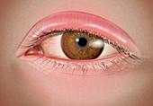 Severe Anterior Blepharitis