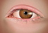 Moderate Anterior Blepharitis