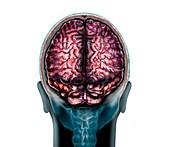 Normal brain, illustration