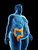 Illustration of an obese man's colon