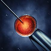 In vitro fertilization, illustration