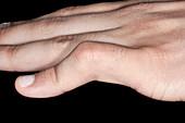 Deformity following dislocated finger