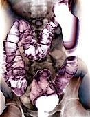Normal colon,X-ray