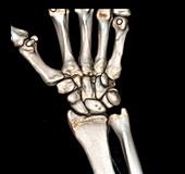Normal wrist,3D CT scan