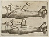 William Harvey's circulation experiment,illustration