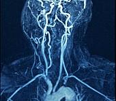 Left subclavian artery blockage,MRA scan