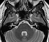 Axial section of the brain and inner ear,MRI scan