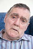 Portrait of a man with Alzheimer's Disease looking worried