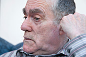 Man with Alzheimer's Disease looking thoughtful