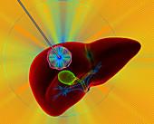 Liver cancer thermal ablation,illustration
