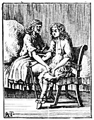 Direct person-to-person blood transfusion, 1679