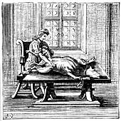 Animal-to-human blood transfusion, 1679
