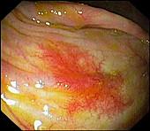 Angiodysplasia of the caecum, endoscopic image