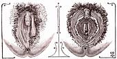 Intersex external sex organs, 19th century