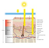 Sun damage to skin, illustration