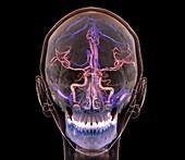 Normal brain blood supply, 3D CT scan