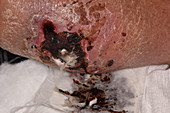Leg wound following a fall