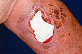 Leg wound treatment following a fall