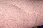 Scars from knee surgery