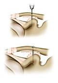 Clavicle ligament shoulder surgery, illustration