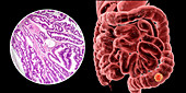 Colon cancer, composite image