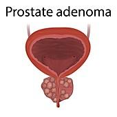Adenoma of the prostate gland, illustration