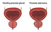 Prostate adenoma and healthy prostate gland, illustration