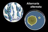 Allergenic fungus Alternaria alternata, composite image