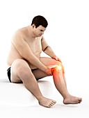 Obese man with knee pain, illustration
