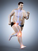 Obese runner with joint pain, illustration