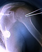 Shoulder cementoplasty, X-ray