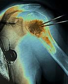 Shoulder cementoplasty, X-ray