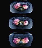 Polycystic kidney disease, MRI scans