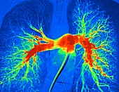 Lung blood vessels, angiogram