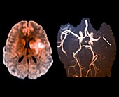 Stroke caused by a thrombosis, MRI and MRA scans