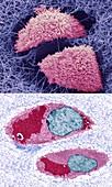 Cartilage, SEM-TEM comparison