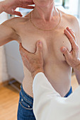 French breast implants replacing