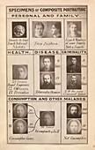 Galton's theories on eugenics, 1880s