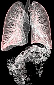 Gas in the lungs and intestines,3D CT scans