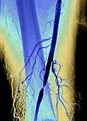 Nearly blocked femoral artery,angiogram