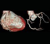 Coronary artery evaluation,3D CT angiography