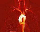 Chest and neck arteries,digital angiogram