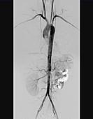 Torso arteries,digital angiogram