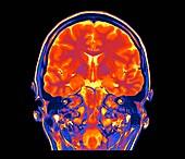 Human brain,coronal MRI scan