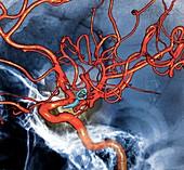 Cerebral aneurysm treatment,3D CT angiogram