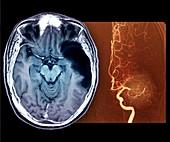 Stroke,MRI brain scan