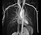 Heart and torso blood vessels,MRI angiogram
